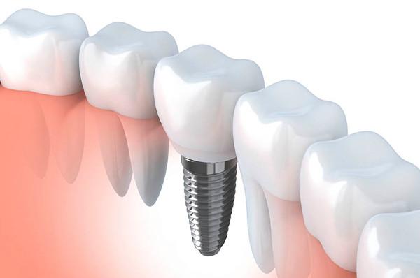 Экспресс имплантация зубов - мифы и действительность