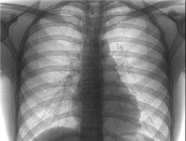 Рентгенологические методы диагностики туберкулеза