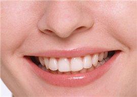 Стоматология - лечение зубов без боли