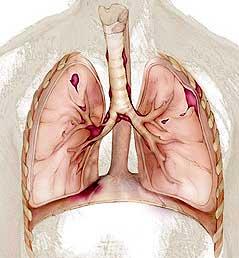 Туберкулезный плеврит